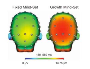 Brain Mindsets